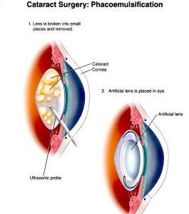 Cataracta: generalitati, simptome, cauze, diagnostic, tratament | Bioclinica